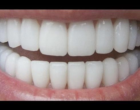 ما هي الطريقة الصحيحة لتنظيف الأسنان؟
