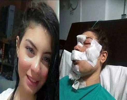 """زوج """"إسراء عماد"""" يفجر مفاجأة صادمة بشأن تشويه وجهها بـ""""سكين"""".. وعلاقتها بصديقه"""