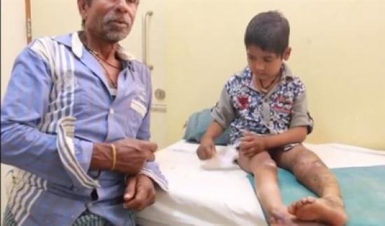 بالفيديو.. حالة نادرة لطفلين يأكلان أصابعهما