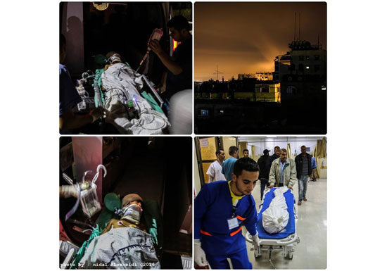 استشهاد طفل واصابة شقيقه في سلسلة غارات إسرائيلية على غزة