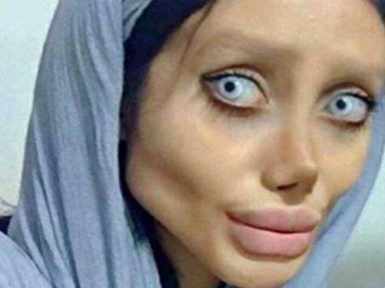 """بالصور - خدعة لا تصدق وراء الفتاة """"شبيهة"""" انجلينا جولي... هكذا هو شكلها الأن"""