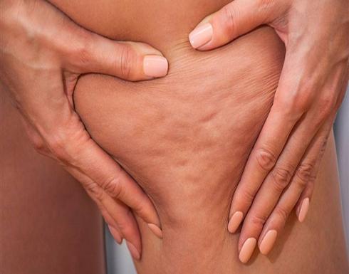 أسباب السيلوليت عند النساء .. 7 طرق مختلفة للعلاج
