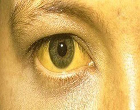 9 مشاكل صحية وراء اصفرار العين عند البالغين