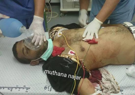 استشهاد شاب بمواجهات في غزة .. واصابات بمواجهات في بيت لحم