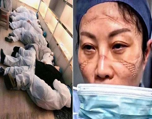 بالصور : مشاهد مؤثرة لأطباء صينيين.. هيستيريا وانهيارات عصبية وأيام بلا نوم