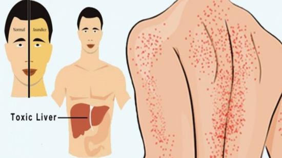 خطير جداً.. إذا ظهرت عليك هذه العلامات تأكد أنك مصاب بإلتهاب الكبد!