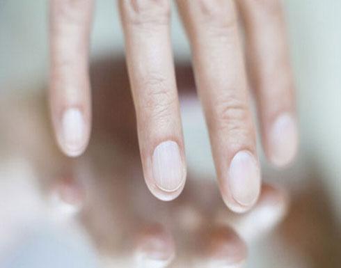 تغيرات  في الأظافر قد تشير إلى الإصابة بمرض الكبد الدهني