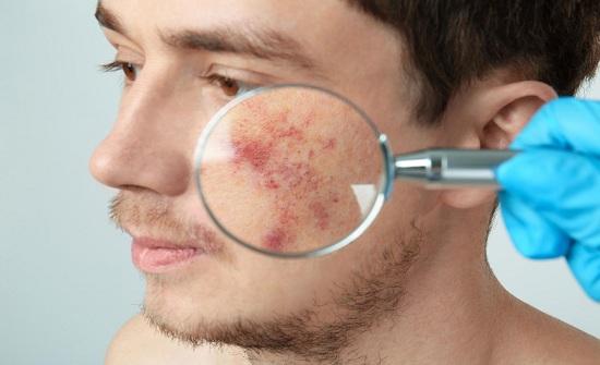 تناول الأسبرين يضاعف إصابة الرجال بسرطان الجلد