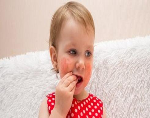 علامات تظهر على طفلك وتدل على إصابته بـ حساسية الصدر