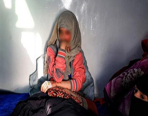 بالصور.. اليمن : رجل يشوه وجه طليقته بالأسيد