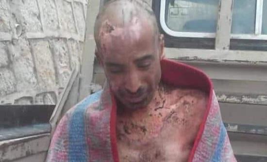 +18 صور صادمة.. هذا ما فعله الحوثي بمعتقل يمني