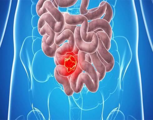 اكتشاف حل لوقف نمو سرطان القولون