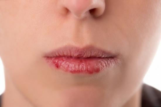 سرطان الفم ينتشر اليكم أساليب الوقاية