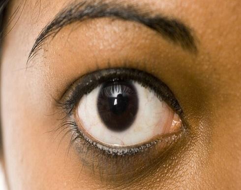 شبكية اصطناعية للعين تحدد من ترى ومن تتجاهل