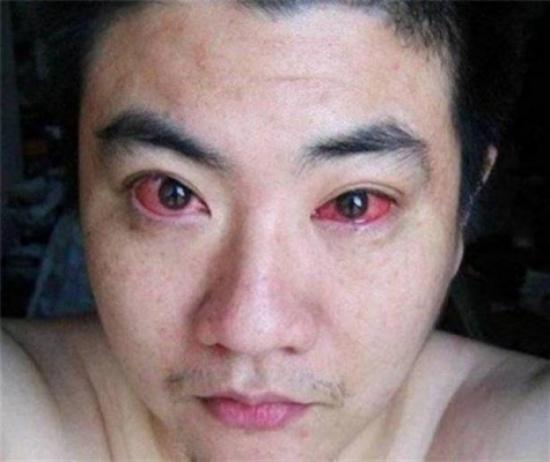 اصيب بسرطان العين...والسبب شيء نقوم به قبل النوم!