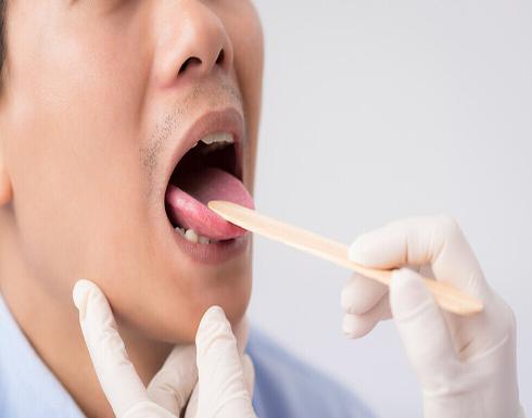 """خبراء يحذرون من """"لسان كوفيد"""" ويدعون إلى تصنيفه كعارض جديد لعدوى فيروس كورونا"""
