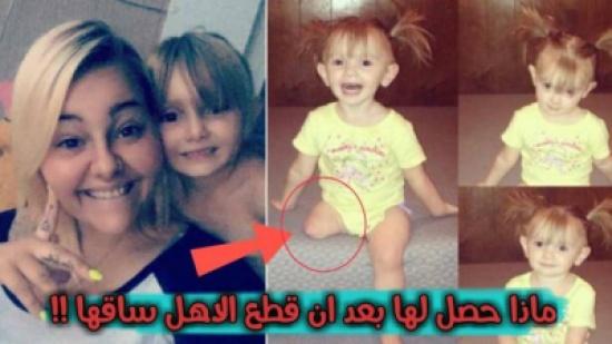 بالفيديو: أصّر الأهل أن يقطعوا ساق ابنتهما رغم اعتراض الأطباء.. انظروا ما حدث لها !