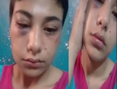 منة عبدالعزيز تفجر مفاجأة حول عذريتها