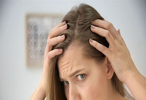 لماذا يتساقط شعرك في الشتاء؟