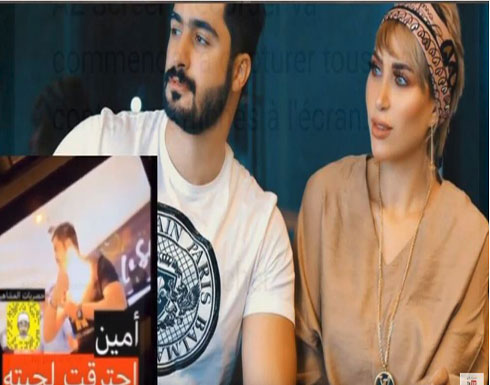 بالفيديو : احتراق لحية أمين زوج الدكتورة خلود
