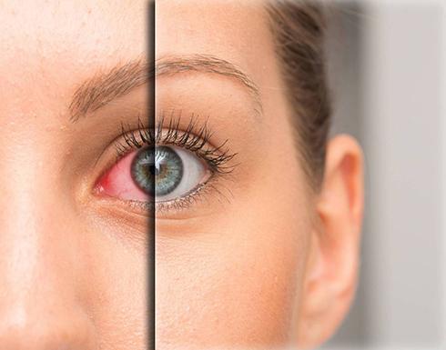 هذه الأعراض تستلزم استشارة طبيب العيون