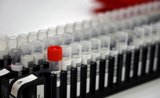 """نسبة الإصابة بالفيروس لكل مليون شخص في الأردن """"من الأعلى عالميا"""""""