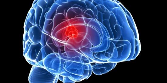 ورم الدماغ أسبابه وطرق الوقاية منه