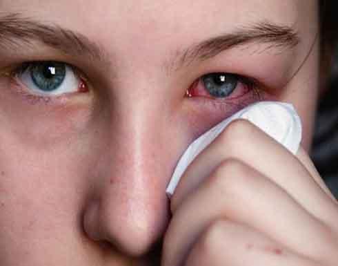 ما هي أسباب إحمرار العين.. ومتى تكون خطيرة؟