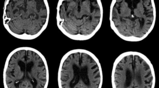دراسة: الإجهاد يزيد فرصة الإصابة بالزهايمر