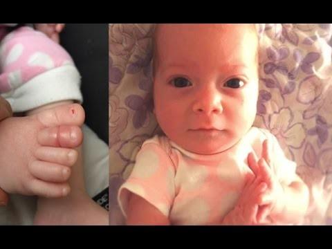 لم تتوقّف طفلتهما عن البكاء ثم اكتشفا أمراً خطيراً على إصبع قدمها!