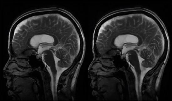 لقطات مذهلة تظهر نبض الدماغ مع القلب!
