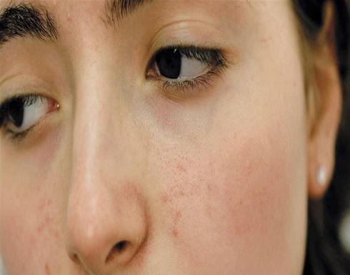 علاجات طبيعية لمشكلة حفر الوجه .. جربيها