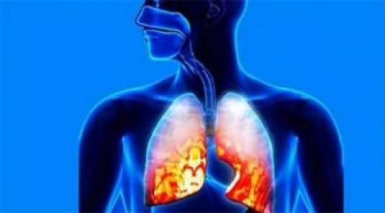 7 علامات تميّز الالتهاب الرئوي