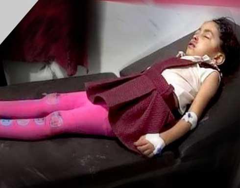 قناص حوثي يصيب طفلة في رأسها شرقي مدينة تعز