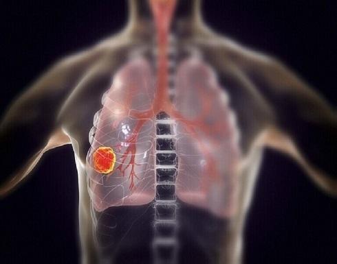 كشف أولى أعراض سرطان الرئة