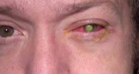 هذا الرجل أصيب بالعمى بسبب شيء نفعله يومياً.. ما هو؟