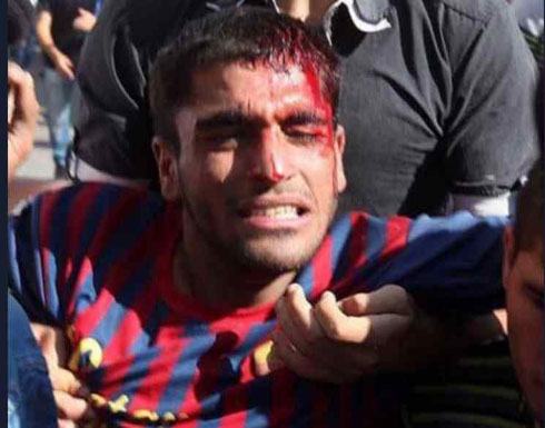 استشهاد فلسطيني معاق برصاص جيش الاحتلال في الضفة الغربية