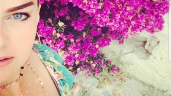 """فنانة شهيرة تفاجئ متابعيها بالظهور """"صلعاء"""" (صور)"""