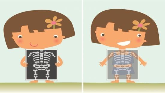 ما الذي يؤثر على صحة العظام؟