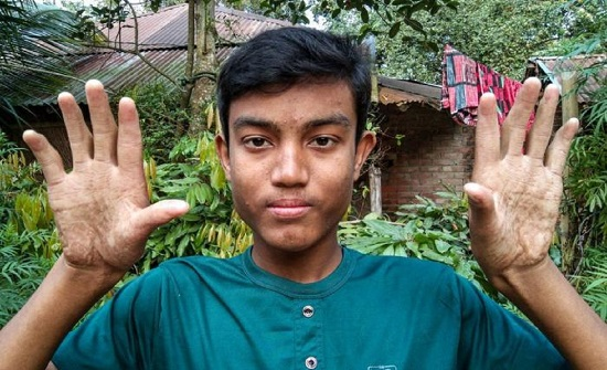 بنجلادش : أسرة بدون بصمات أصابع