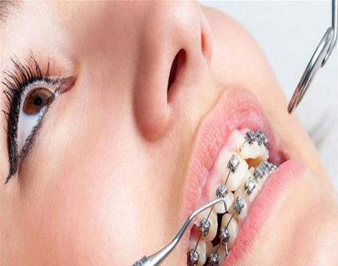 دراسة صادمة.. تقويم الأسنان لا فائدة له!