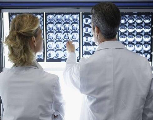 توصيات لتجنب الإصابة بالجلطة الدماغية