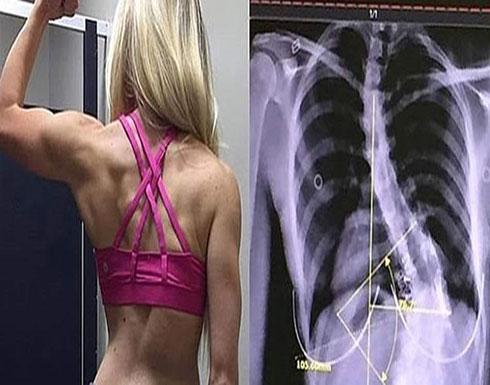 امرأة تعيش بعمود فقري ملتوٍ.. وترفض إجراء عملية جراحية! (صور)