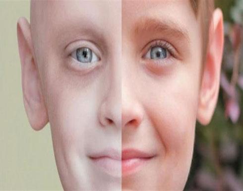 خبر سار لمرضى السرطان.. إبتكار دواء يصل الى منطقة المرض فقط