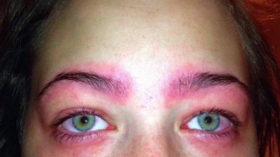أرادت صبغ حاجبيها فكادت تُصاب بالعمى!