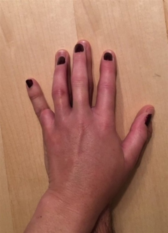 شاهد.. ماذا فعل رجل لزوجته بعد فقدان أحد أصابعها