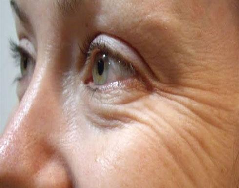لعلاج تجاعيد العين ..  ماسك الصبار وفيتامين C