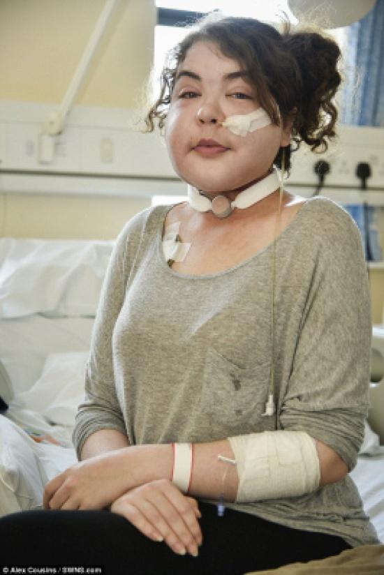 بالصور: شخّص الأطباء إصابتها بنزلات البرد... وبعد 6 أشهر اكتشفوا الحقيقة!