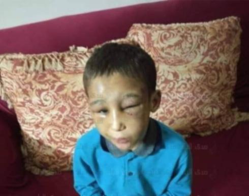 إكراه على شرب المخدرات وتعذيب وتصوير.. حكاية طفل مصر مع والديه
