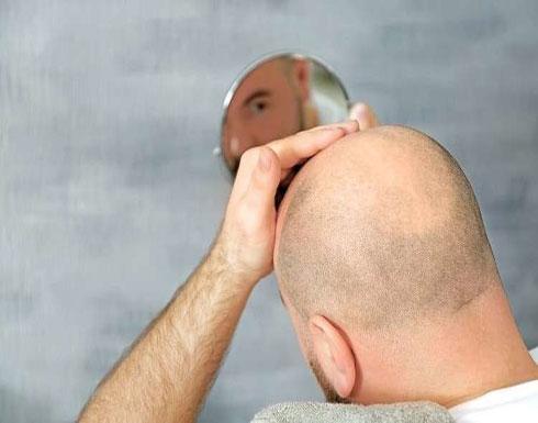 مستحضر جديد يكافح الصلع ويعيد نمو الشعر بفترة قصيرة